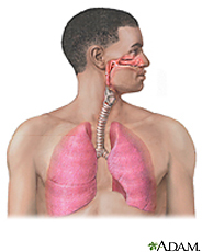 20120215165502-rtuberculosis.jpg
